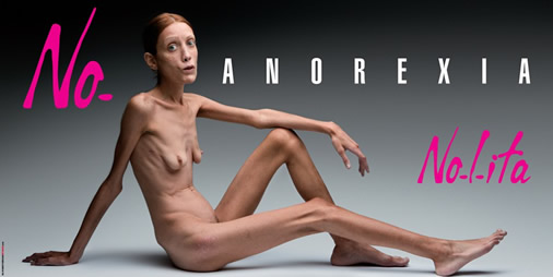 Oliviero Toscani - Anorexia